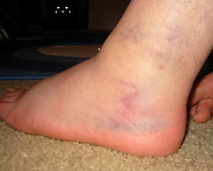 Ankle_close_day3_1
